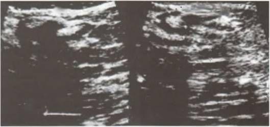 Фіброзно-кістозна мастопатія
