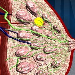 Мастопатія - доброякісна пухлина