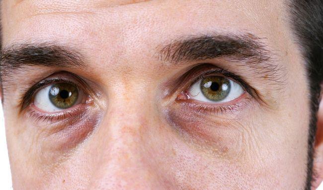 Мішки під очима: 12 причин виникнення проблеми