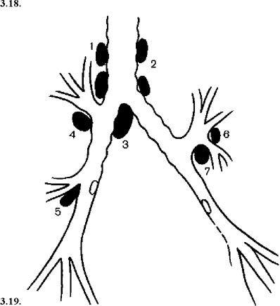Схема розташування регіонарних лімфатичних вузлів трахеобронхиальной групи