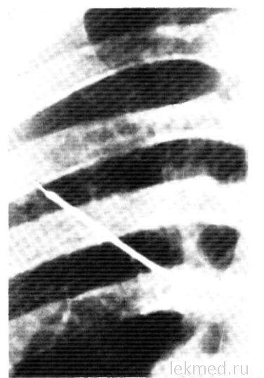 Трансбронхіал`ная біопсія легені