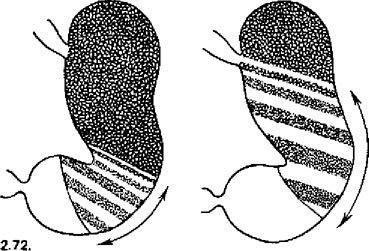 Межі кислотопродуцирующей зони шлунка при виразковій хворобі шлунка