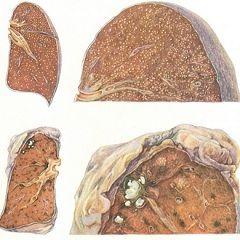 Основна характеристика міліарний туберкульоз - густа дисемінація дрібних горбків
