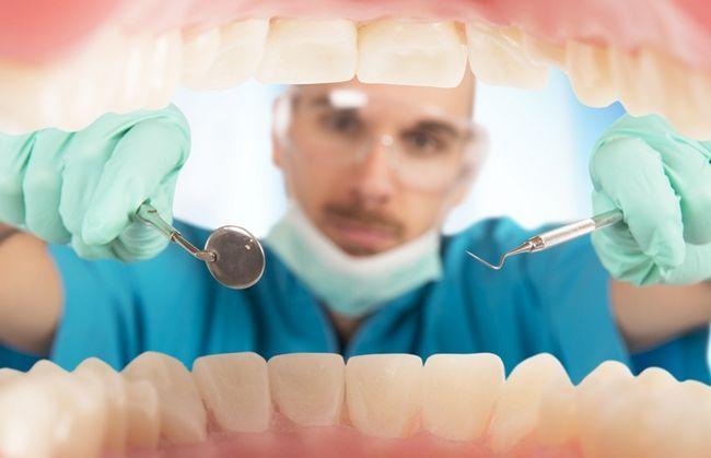 Наліт на зубах: види і причини