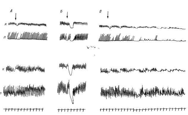 Реакції кільцевої і поздовжньої мускулатури петлі у відповідь на введення запального ексудату