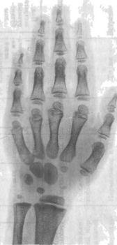 Рентгенограма кисті при гипофизарном нанізмі