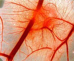 Нейроциркуляторна дистонія симптоми