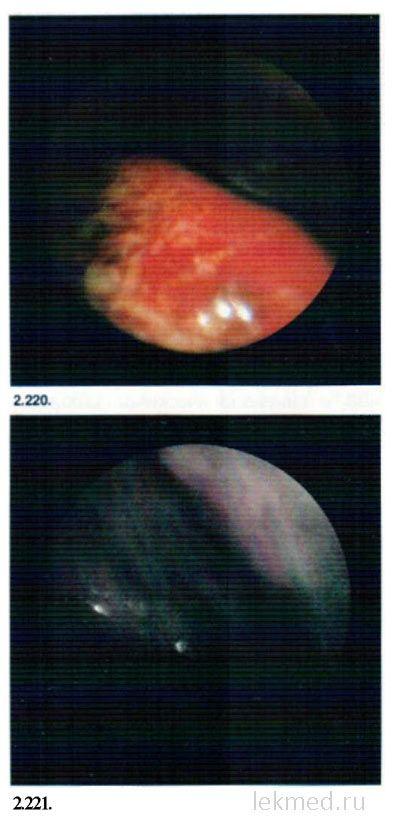 гематома при розриві нирки