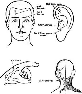 Точки акупунктури, використовувані для знеболювання при видаленні катаракти і чужорідних тіл очі
