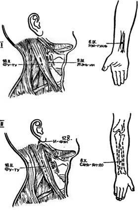 Точки акупунктури для іглоанальгезіі при субтотальної резекції щитовидної залози