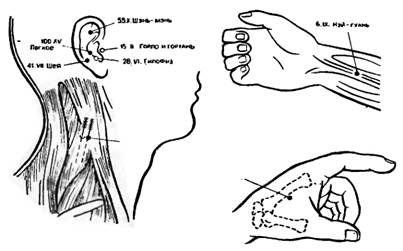Аурікулярние і корпоральние точки для іглоанальгезіі при операціях на щитовидній залозі