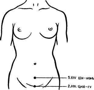 Тонкі акупунктури при знеболюванні родової діяльності