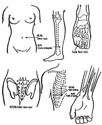 Точки акупунктури для іглоанальгезіі при операції кесаревого розтину