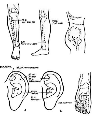 Точки акупунктури, використовувані при гінекологічних операціях