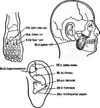 Точки акупунктури, використовувані для знеболювання при трепанації черепа