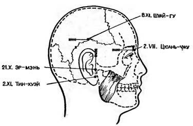 Точки акупунктури для іглоанальгезіі при трепанації черепа і внутрішньочерепних операціях