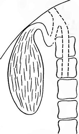 звапніння стінки жовчного міхура