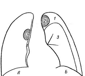Відтискування газом патологічного утворення легкого назовні