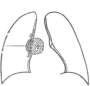Облямівка газом патологічного утворення