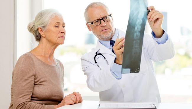 Лікар-ортопед - це фахівець, який займається виявленням патологій розвитку опорно-рухового апарату і їх корекцією