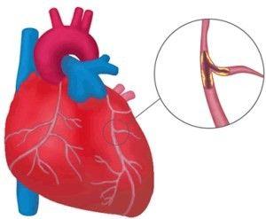 Ускладнення інфаркту міокарда