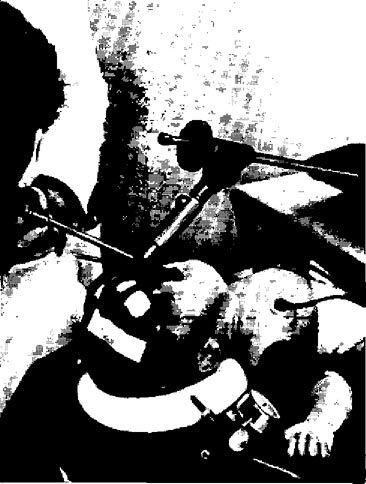 Оптична ларінготрахеоскопія під наркозом