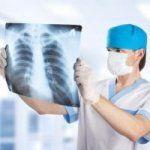 Набряк легень - пропотеваніе з кровоносних судин рідкого вмісту в легеневу тканину