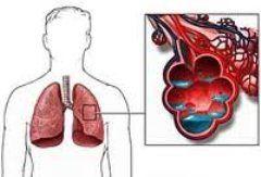 Набряк легень - це прояв лівошлуночкової серцевої недостатності