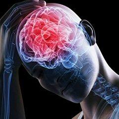 Сильні головні болі - один із симптомів набряку мозку