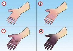 Залежно від тяжкості ураження виділяють 4 ступені відмороження