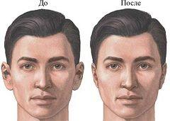 До і після отопластика