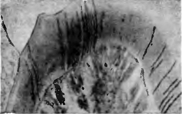 Поширення сажі по дентинних канальцях