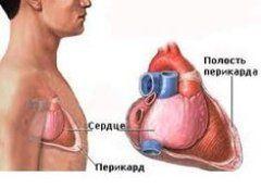 діагностика перикардиту