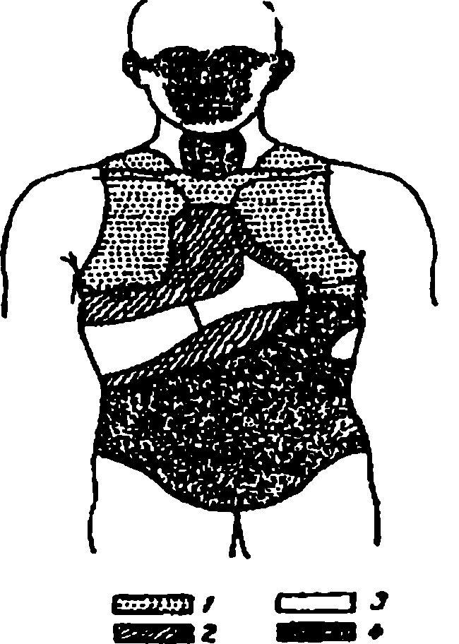 Розподіл перкуторногозвуку над різними областями тіла