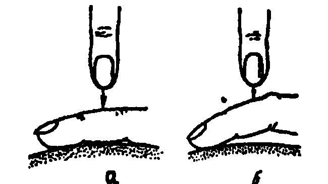 положення пальця-плессіметра