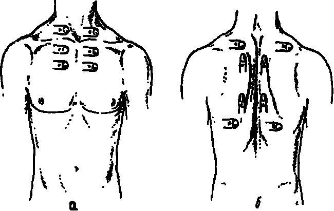 Положення пальця-плессіметра при порівняльній перкусії легень
