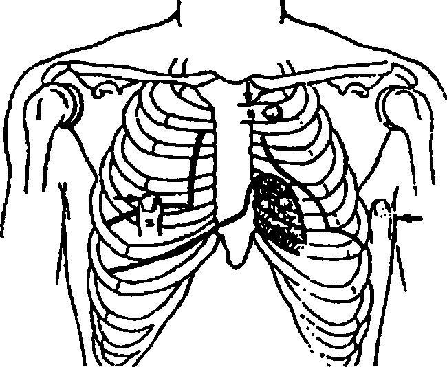 перкусія серця