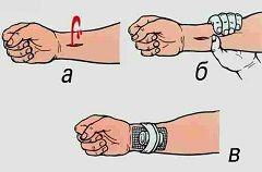 Перша допомога при нещасних випадках - зупинка кровотечі
