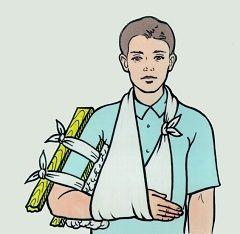 Іммобілізація пошкодженої кінцівки - перша допомога при переломах