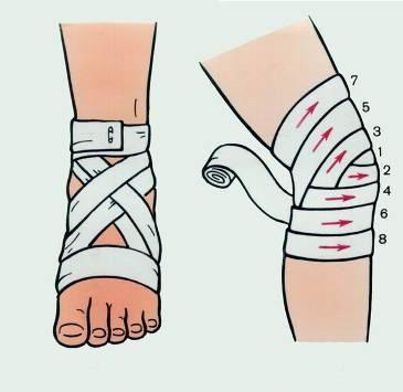 Фіксація травмованої кінцівки при розтягуванні зв`язок