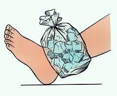 Холодний компрес до ушкодженого суглобу - обов`язкова умова першої допомоги при вивиху