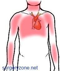 Перші ознаки інфаркту
