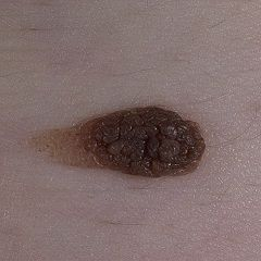 Пігментний невус - родимка