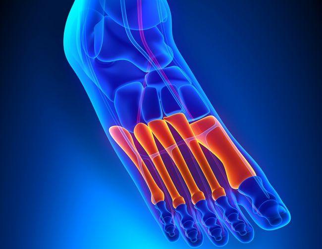 Плюсневая кістка