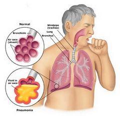 Кашель з мокротою - один із симптомів пневмонії