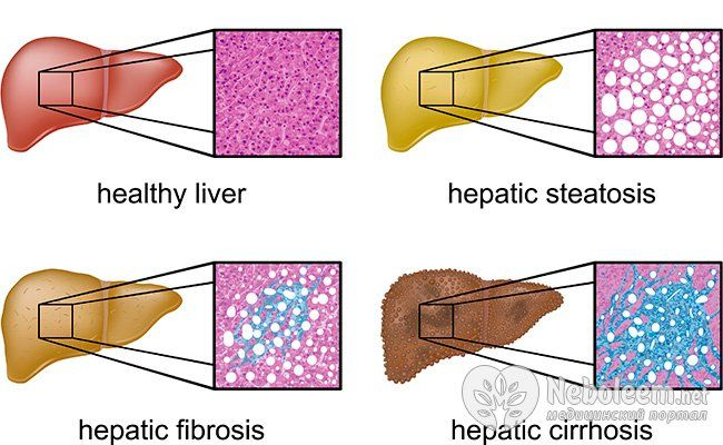 Небезпечні наслідки гепатиту