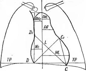Визначення і назва розмірів серцево-судинної тіні в прямій проекції