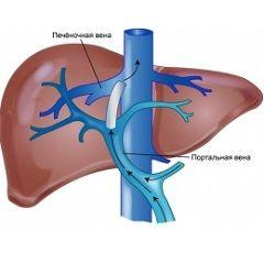 Портальна гіпертензія - синдром, який характеризується підвищенням тиску в системі ворітної вени