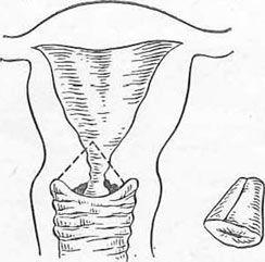 Схема видаляється при діатермоексцізія конуса шийки матки