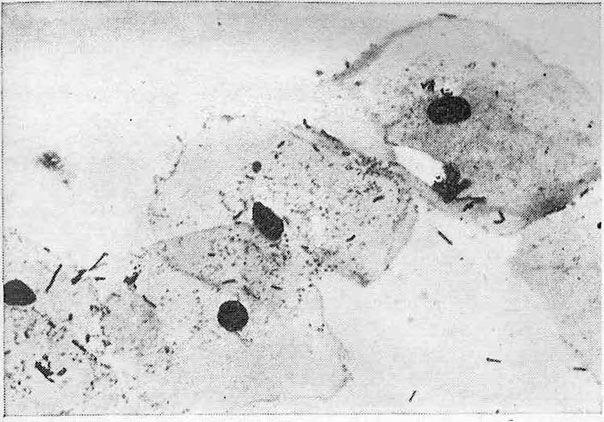 Поверхневі клітини багатошарового плоского епітелію вагінальної частини шийки